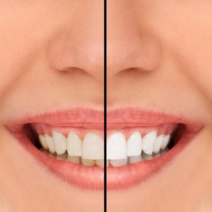 Teeth Whitening | Royal Oak Dentist