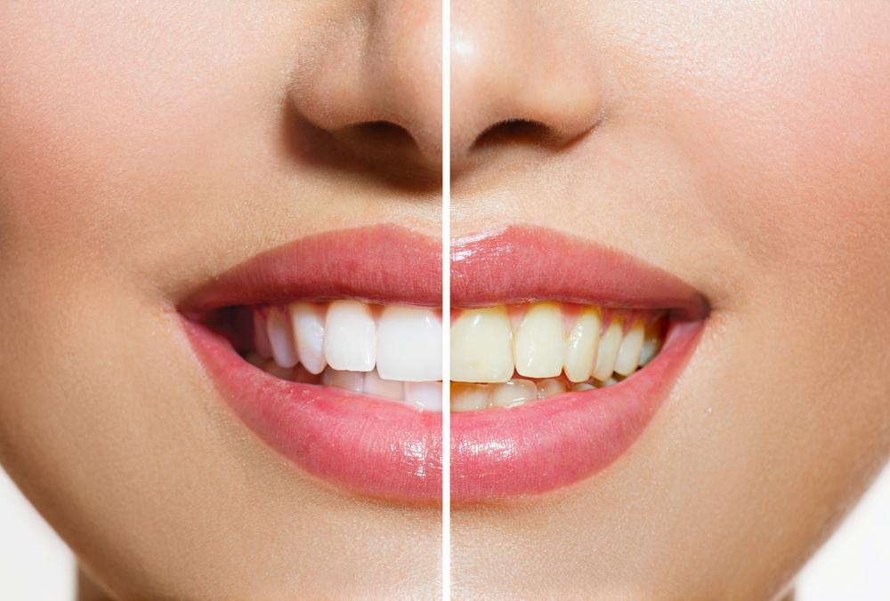 Side by side image of woman's bright smile l Teeth Whitening 48220
