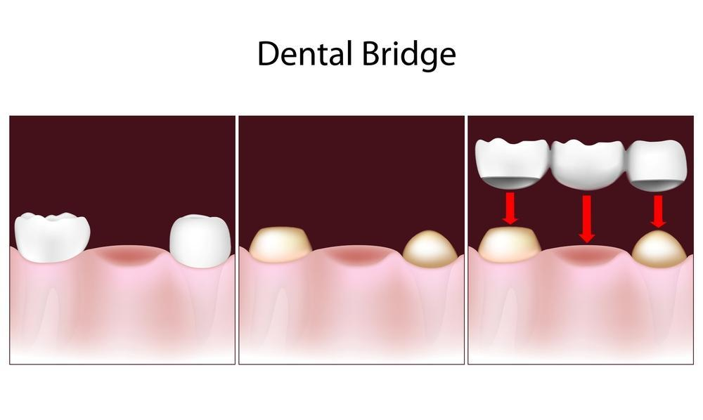 image of a dental bridge | royal oak mi