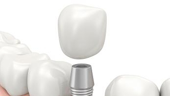 Dental Implants | Royal Oak MI Denitst