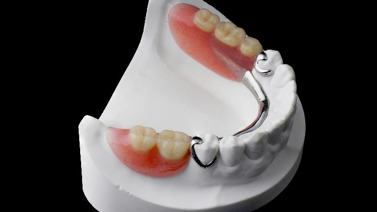 Dentures | Implants | Bridges | Royal Oak MI